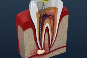 Cross-section of a tooth getting a root canal